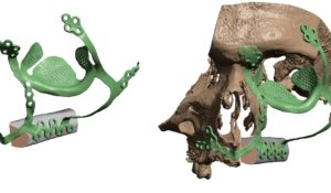 3D printing of prosthesis